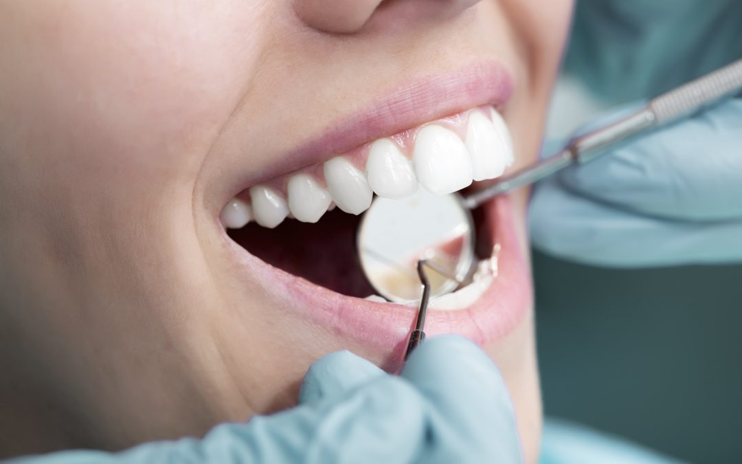 Composite fillings: What to expect